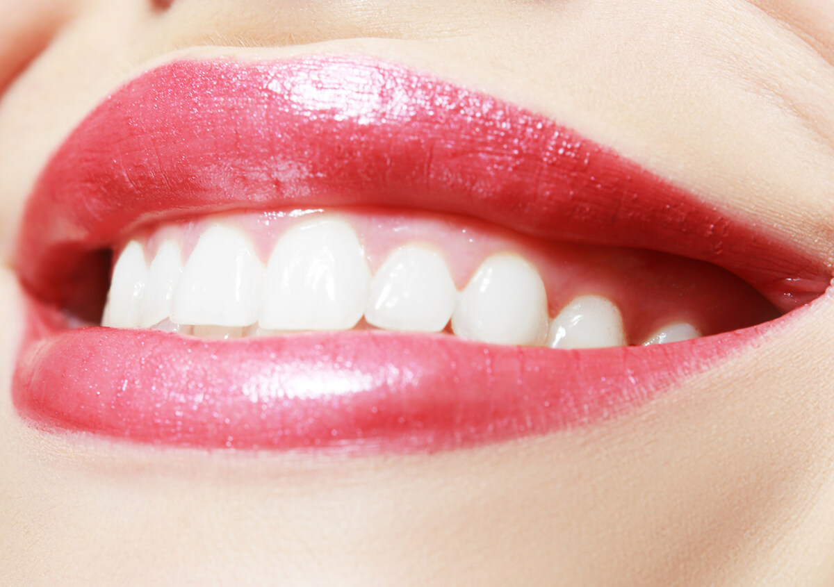 American Fork, Utah, dentist helps patients improve their smiles with professional teeth whitening services