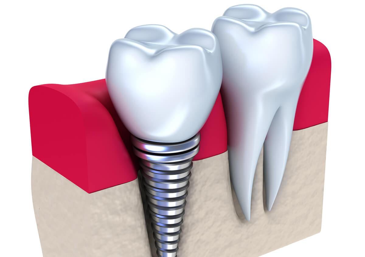 Implants Dentist in American Fork Utah Area