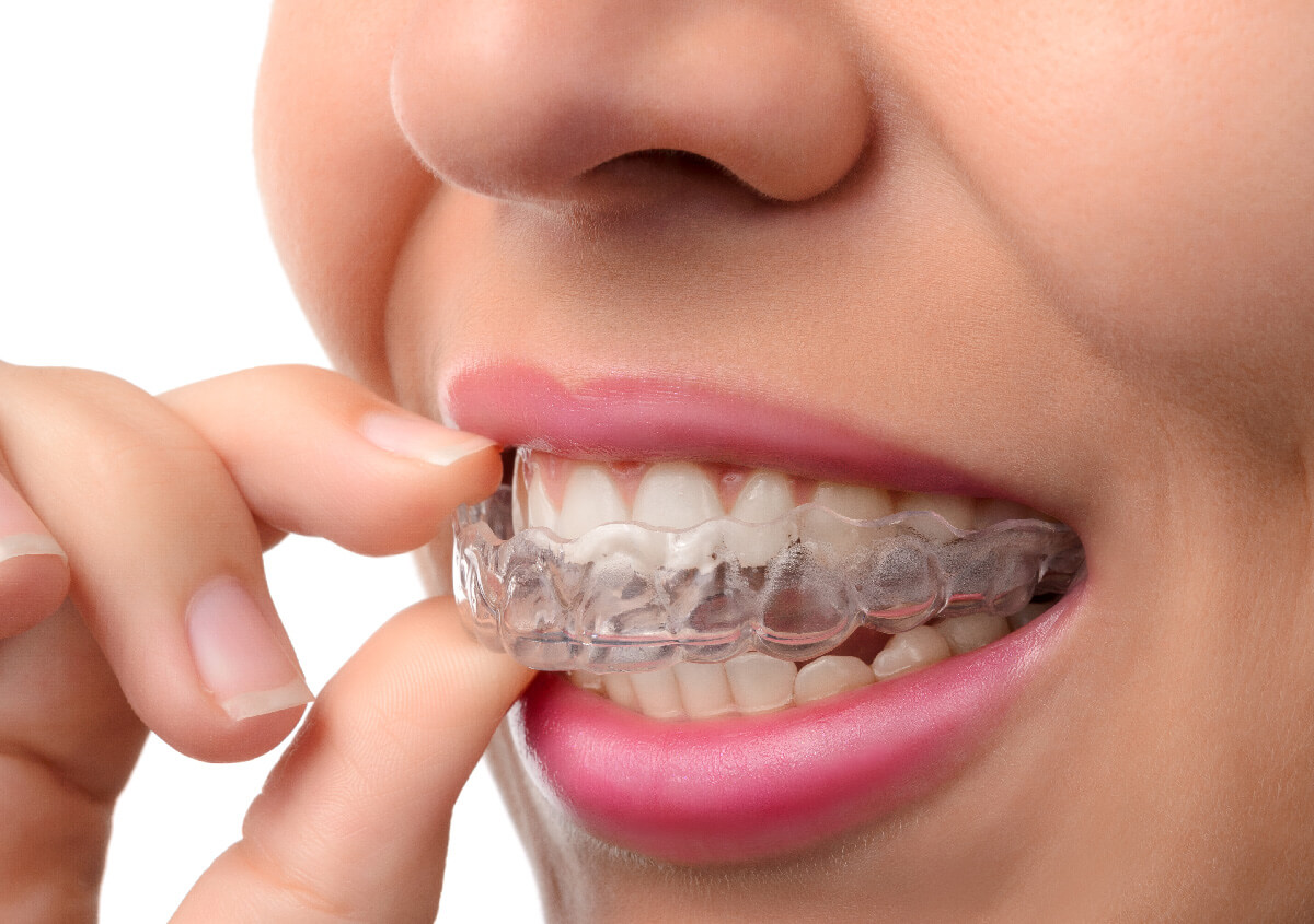 Straighten Teeth, Effectively and Discreetly with Invisible Teeth Aligners
